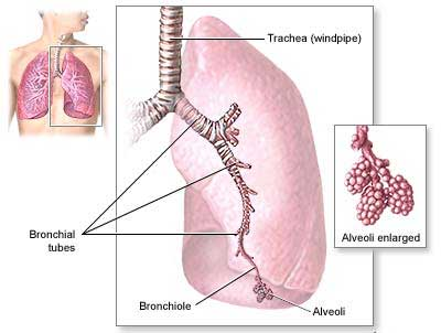 oral steroids for asthma in toddlers